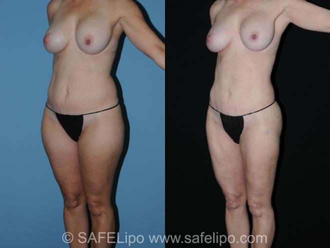 SAFELipo Left Oblique Photo, Shreveport, Louisiana, The Wall Center for Plastic Surgery, Case 260
