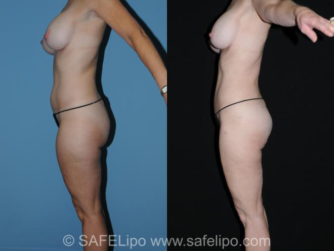 SAFELipo Left Side Photo, Shreveport, Louisiana, The Wall Center for Plastic Surgery, Case 260