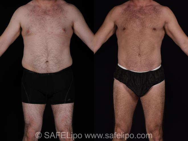 Abdominoplasty Front Photo, Shreveport, Louisiana, The Wall Center for Plastic Surgery, Case 566