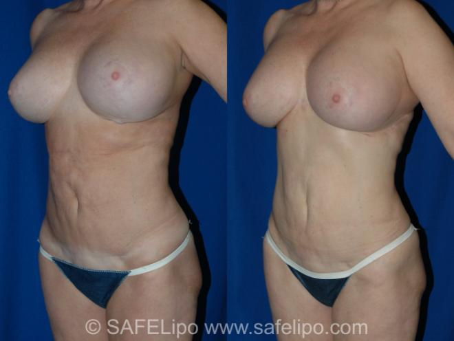 SAFELipo Left Oblique Photo, Shreveport, Louisiana, The Wall Center for Plastic Surgery, Case 338