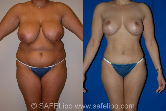 SAFELipo Front Photo, Shreveport, Louisiana, The Wall Center for Plastic Surgery, Case 1