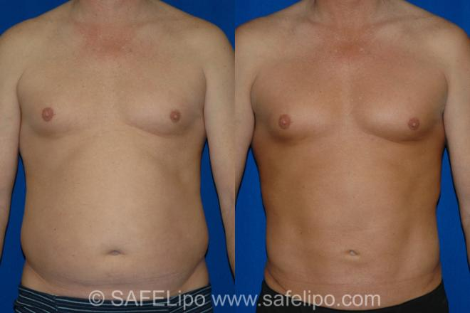 SAFELipo Front Photo, Shreveport, Louisiana, The Wall Center for Plastic Surgery, Case 14