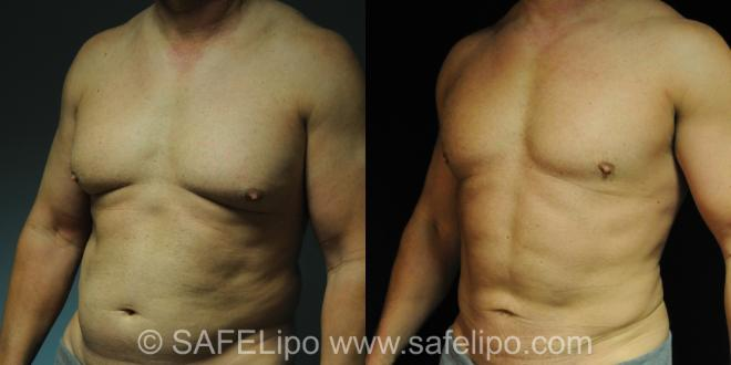 SAFELipo Front Photo, Shreveport, Louisiana, The Wall Center for Plastic Surgery, Case 212