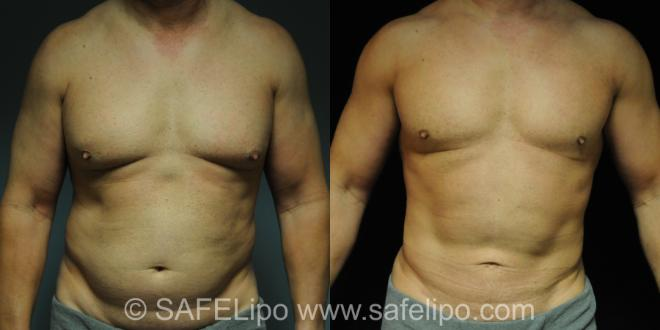 SAFELipoHD® Case 212 Before & After View #1 | SAFELipo®