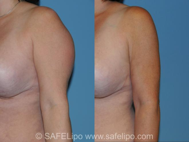 SAFELipo Left Oblique Photo, Shreveport, Louisiana, The Wall Center for Plastic Surgery, Case 213