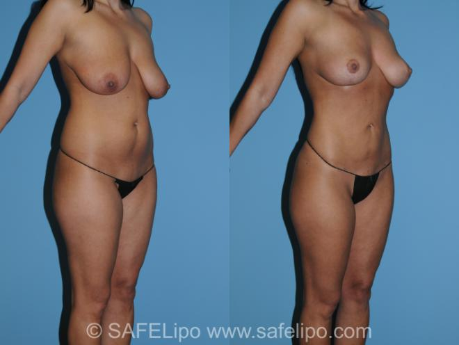 SAFELipo Right Oblique Photo, Shreveport, LA, The Wall Center for Plastic Surgery, Case 267