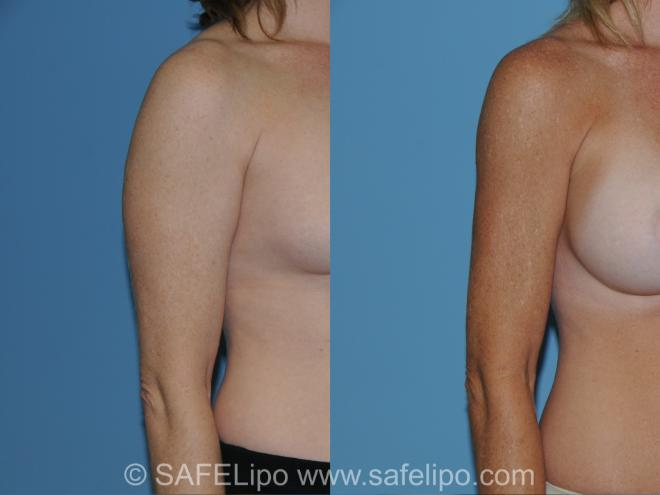 SAFELipo Right Oblique Photo, Shreveport, LA, The Wall Center for Plastic Surgery, Case 296