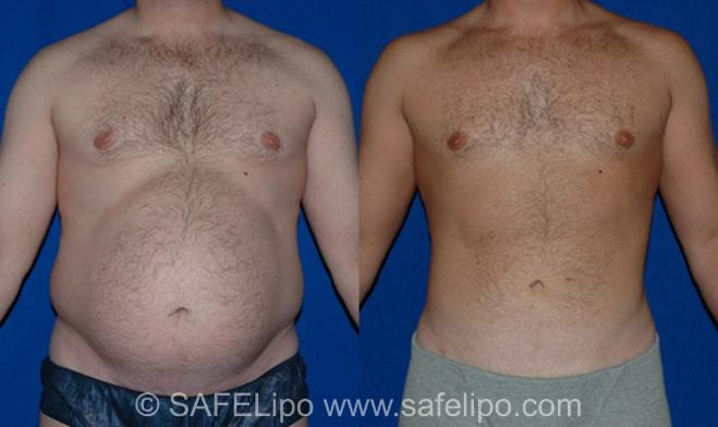 SAFELipoHD® Case 11 Before & After View #1 | SAFELipo®
