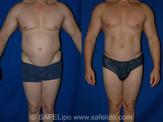 SAFELipoHD® Case 12 Before & After View #1 | SAFELipo®