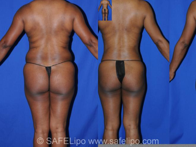 Abdominoplasty Back Photo, Shreveport, Louisiana, The Wall Center for Plastic Surgery, Case 285