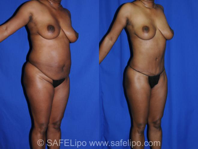 Abdominoplasty Right Oblique Photo, Shreveport, LA, The Wall Center for Plastic Surgery, Case 285