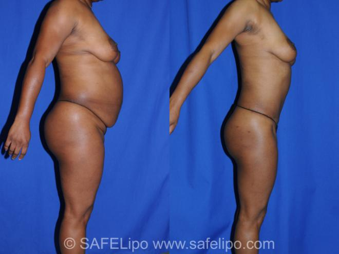 Abdominoplasty Right Side Photo, Shreveport, LA, The Wall Center for Plastic Surgery, Case 285