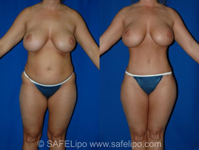 Abdominoplasty Front Photo, Shreveport, Louisiana, The Wall Center for Plastic Surgery, Case 286