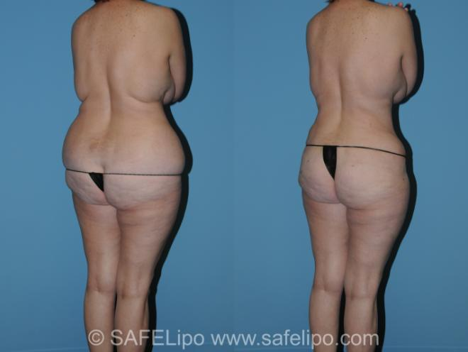 Abdominoplasty Back L Oblique Photo, Shreveport, LA, The Wall Center for Plastic Surgery, Case 316