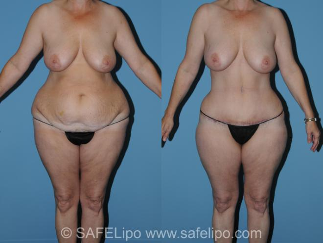 Abdominoplasty Front Photo, Shreveport, Louisiana, The Wall Center for Plastic Surgery, Case 316