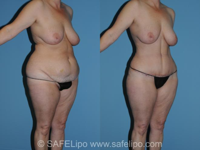 Abdominoplasty Right Oblique Photo, Shreveport, LA, The Wall Center for Plastic Surgery, Case 316