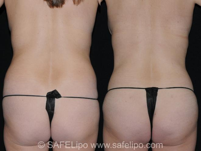 Abdominoplasty Back Close-Up Photo, Shreveport, LA, The Wall Center for Plastic Surgery, Case 330
