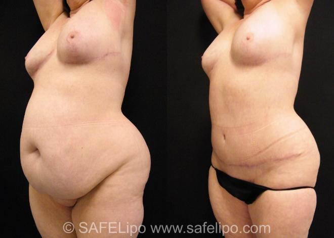 Tummy Tuck Case 392 Before & After View #1 | SAFELipo®