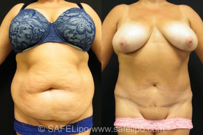 Tummy Tuck Case 394 Before & After View #1 | SAFELipo®