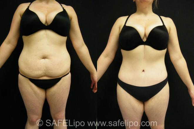 Case 398 Before & After View #1 | SAFELipo®